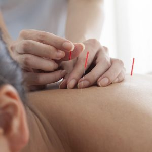 Acupuncture in Texarkana, AR